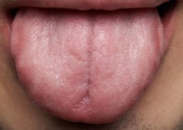 Η γλώσσα σου (θα γίνει δυο μέτρα)